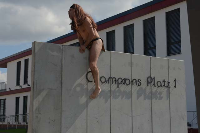 Champions-Implants-flonheim-Gallery